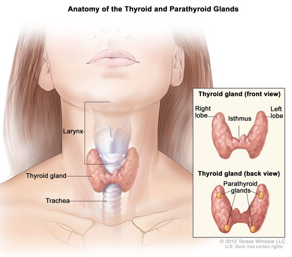 kanser papillary thyroid